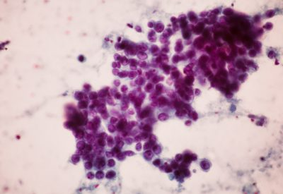 breast-tissue-fna